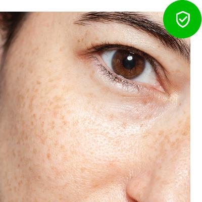 Bescherm jezelf tegen zonneschade vlekken en pigmentatie door de zon