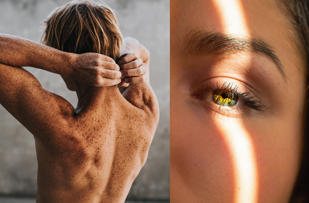 De schadelijke effecten van de zon op je huid zorgen voor huidveroudering